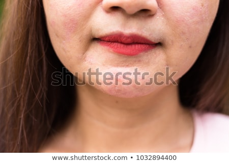 Girl with eczema on face Stock photo © bluering