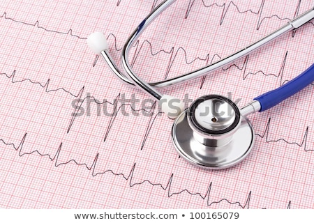 cardiac monitor printing ekg results monitor pulse stock photo © candyboxphoto