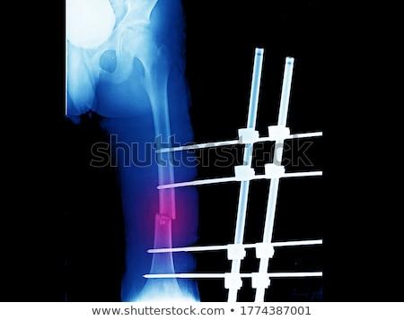 fraturar · cirúrgico · intervenção · ortopedia · médico · ciência - foto stock © alexonline