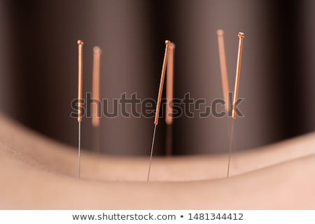 close up of woman undergoing acupuncture treatment stock photo © andreypopov