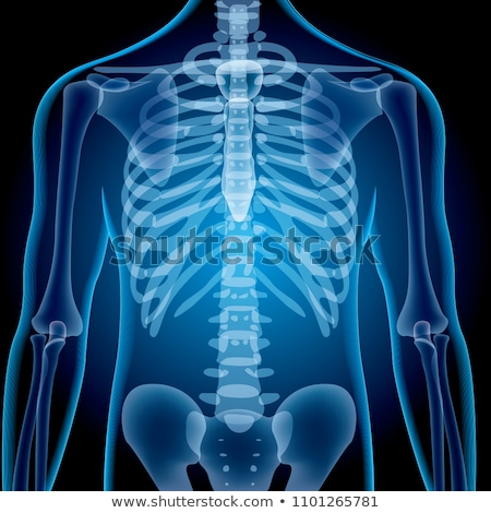 X-ray image of Human Chest Stock photo © Klinker