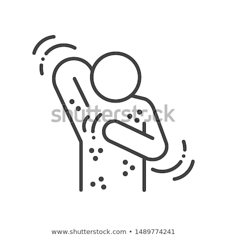 A Vector of Skin Urticaria Stock photo © bluering