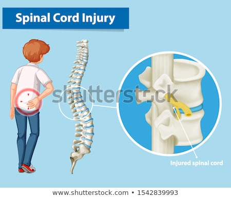 Diagram showing spinal cord injury in human Stock photo © bluering