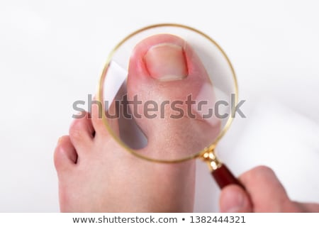Toes of foot with nail infection Stock photo © Hofmeester