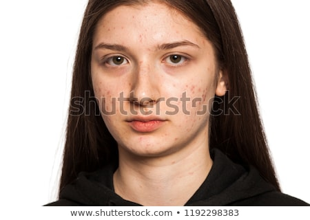 a girl with pimples problem stock photo © bluering