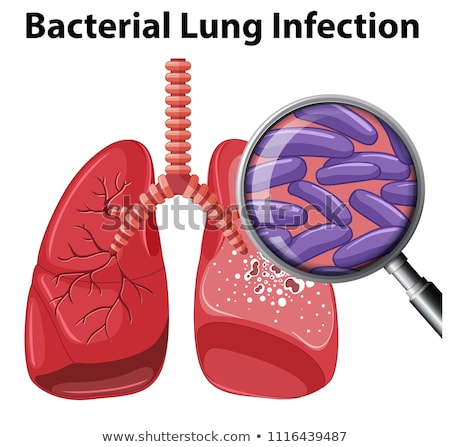 a vector of bacterial lung infection stock photo © bluering
