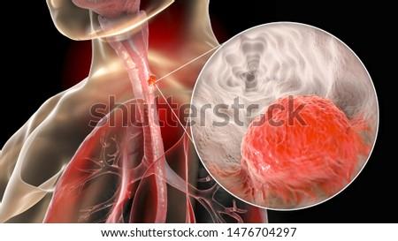 Diagnosis - Esophageal Cancer. Medical Concept. Stock photo © tashatuvango