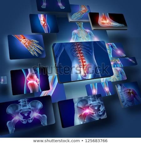 Osteoporose diagnose medische afgedrukt wazig tekst Stockfoto © tashatuvango