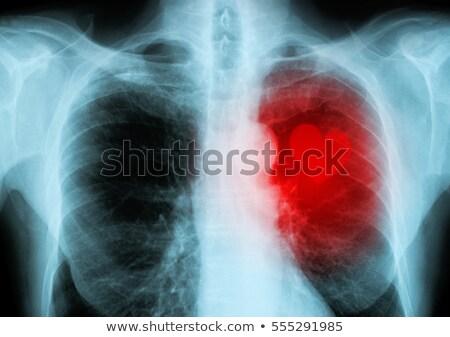 anatómia · mellkas · fájdalom · szív · 3D · renderelt - stock fotó © lightsource