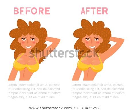 depilação · com · cera · bela · mulher · laser · cabelo · remoção · biquíni - foto stock © serdechny