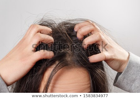 Stock photo: Woman Scratching Her Itchy Head