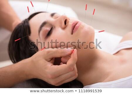 mujer · acupuntura · tratamiento · primer · plano · mano - foto stock © andreypopov