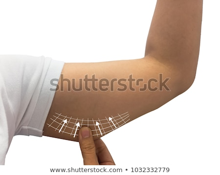 Loose Upper Arm Stock photo © barabasa