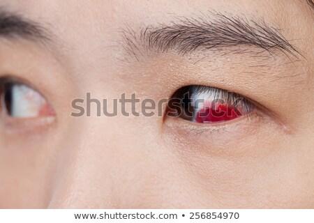 szem · sérülés · fertőzött · egészséges · makró · közelkép - stock fotó © FrameAngel