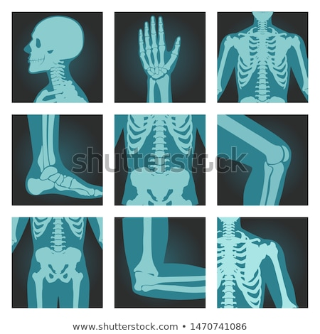 X-ray shot of shoulder, human body bones, radiography, rib cage, chest and arm, vector illustration. Stock photo © MarySan