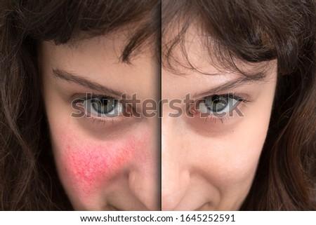 Female facial flushing Stock photo © shutswis
