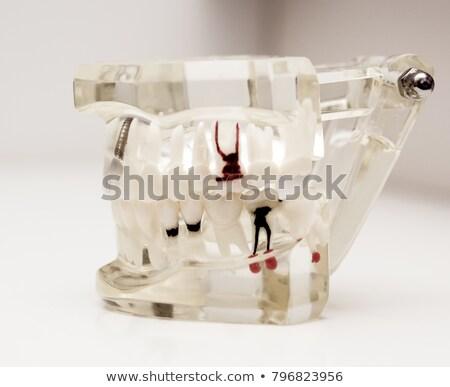 Tandheelkundige tools implantaat model witte man Stockfoto © AndreyPopov