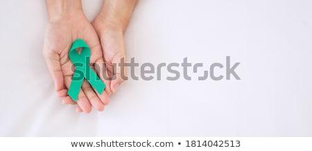 Diagnosis - Scleroderma. Medical Concept. Stock photo © tashatuvango