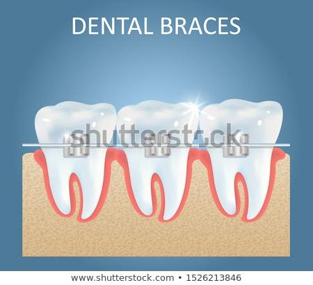 Tandheelkundige bretels creatieve reclame banner vector Stockfoto © pikepicture
