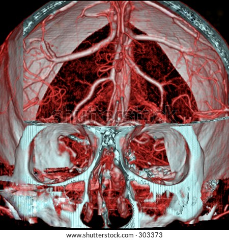 A real MRI/ MRA (Magnetic Resonance Angiogram) of the brain vasc Stock photo © tobkatrina