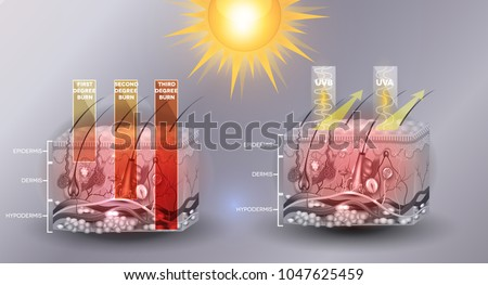 Protected skin with sunscreen lotion, UVB and UVA rays can not p Stock photo © Tefi