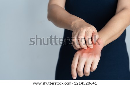 People scratch the itch with hand, Arm, itching, Concept with He Stock photo © eddows_arunothai