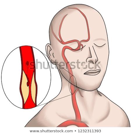 Artery Stock photo © Spectral