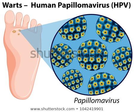 Diagram showing warts in human foot Stock photo © colematt