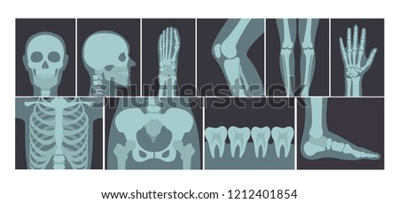 Set of x-ray shots pictures of human body parts, head, wrist, rib cage, foot, spine, knee, cubit, sh Stock photo © MarySan