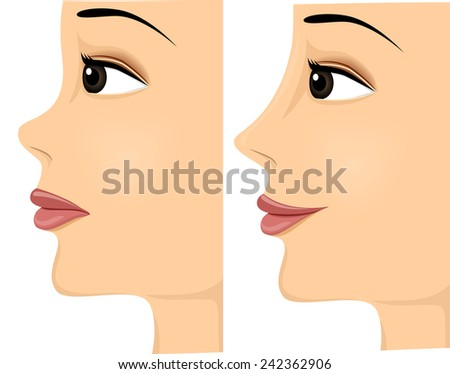 woman showing the difference of nose before and after rhinoplasty Stock photo © adrenalina