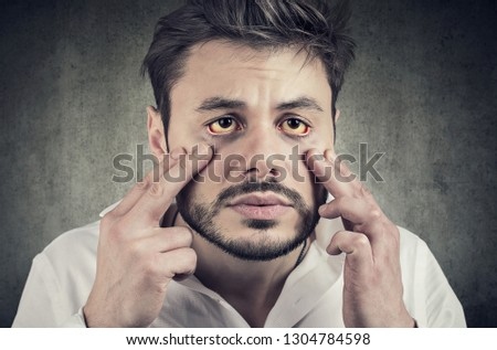 Sick man looking in a mirror has yellowish eyes as sign of possible liver infection or other disease Stock photo © ichiosea