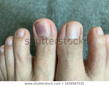 Subungual hematoma under nail Stock photo © claudiodivizia