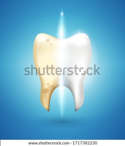 Vector illustration for bleaching teeth. Half white, half tooth  Stock photo © popaukropa