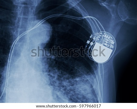 Heart pacemaker. Medical device. Human heart implantable cardiov Stock photo © Terriana