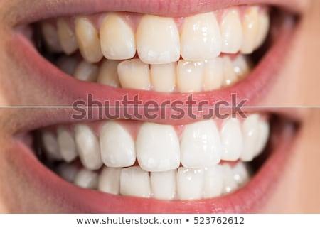 blanqueo · diente · sonrisa · cara · salud · belleza - foto stock © andreypopov