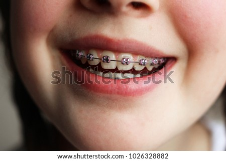 Photo of happy school girl with dental braces laughing at camera Stock photo © deandrobot