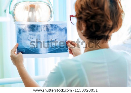 Panoramic dental X-ray of a human jaw holding in the hands of th Stock photo © snowing