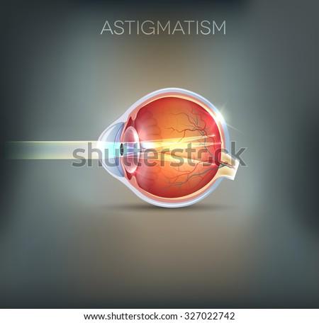 Astigmatism eyesight disorder. Anatomy of the eye, cross section Stock photo © Tefi