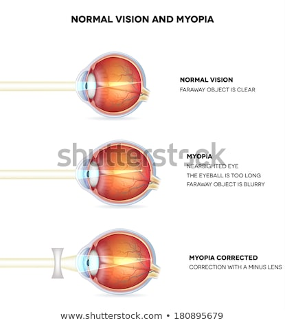 Myopia and normal vision. Myopia is being shortsighted. Stock photo © Tefi