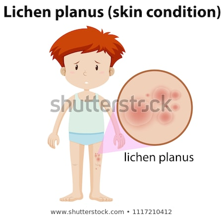 A Young Man Having Lichen Planus Stock photo © bluering
