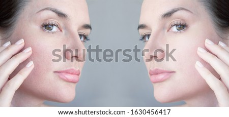 Moisturizing beauty face cream for sensitive skin and red roses  Stock photo © Anneleven