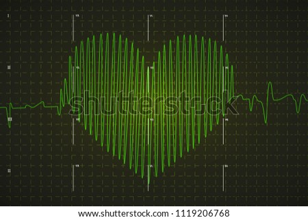 Human electrocardiogram graph in heart shape, bright green graph on dark background with marks Stock photo © evgeny89