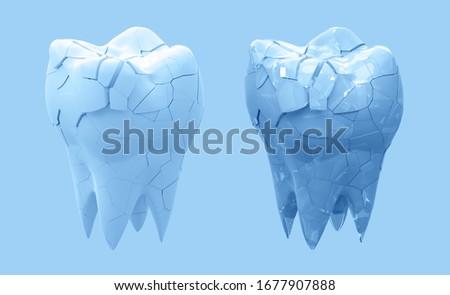 人間 歯 ひびの入った 痛み 孤立した 白 ストックフォト © FrameAngel