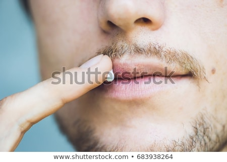 Herpes on lips of the young man. Man smears herpes with herpes cream Stock photo © galitskaya