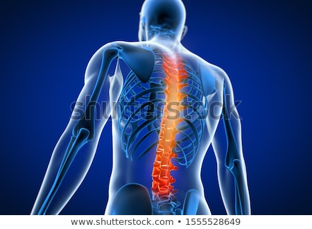 3d rendered anatomy illustration of painful back Stock photo © DTKUTOO