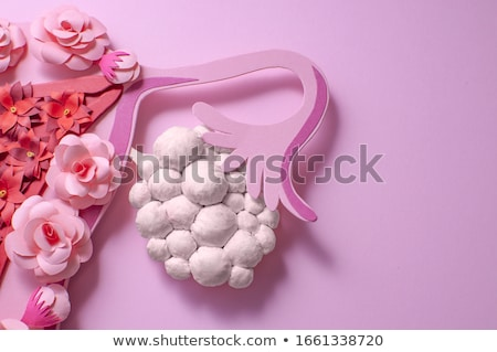 Ovarian Cyst Diagnosis. Medical Concept. Stock photo © tashatuvango