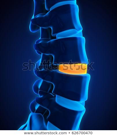 3d rendering medical illustration of the cervical spine stock photo © maya2008