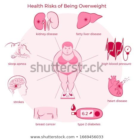 Otyłość zdrowia ryzyko tłuszczu osoby kontroli Zdjęcia stock © Lightsource