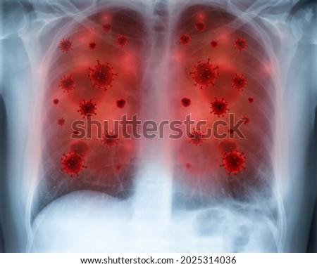 nephropathy medical concept on blue background stock photo © tashatuvango