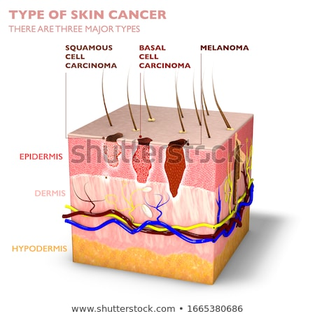 Skin Mole Question Stock photo © Lightsource